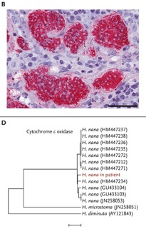 Cancer parasitos Fig2
